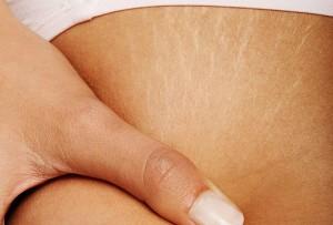 Как избавиться от растяжек на коже?