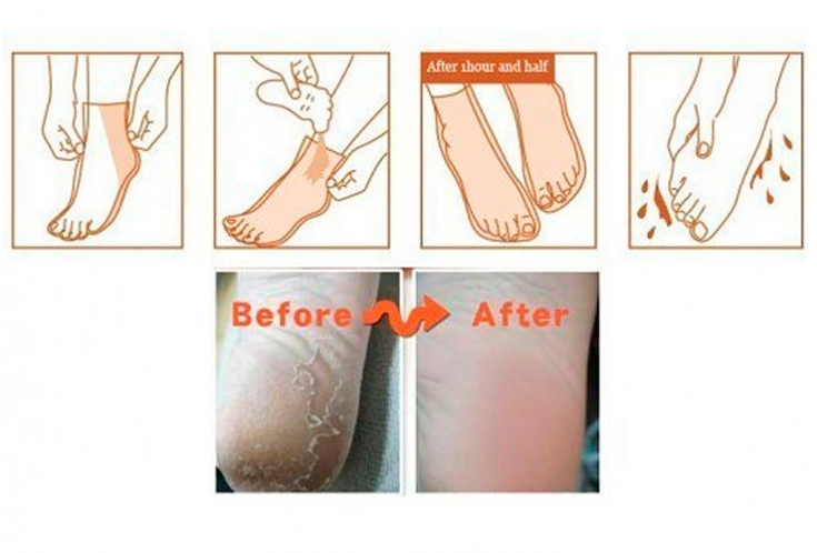 Tony Moly Shiny Foot Peeling Liquid 02
