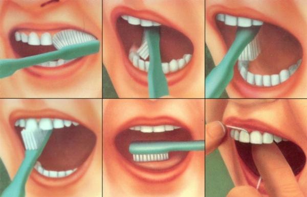 как ухаживать за зубами 05