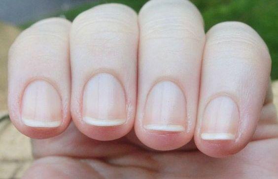 Что нужно для ухода за ногтями дома?